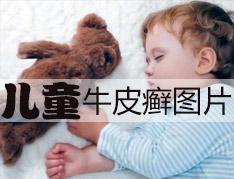 儿童牛皮癣形成的原因是什么